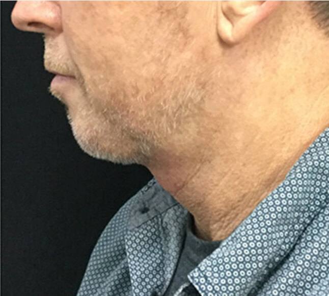 Kybella treatment on man, after.jpg