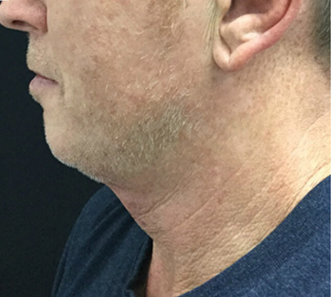 Kybella treatment on man, before