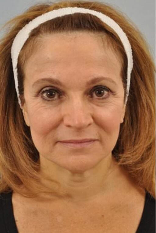botox injection med spa service before after 2
