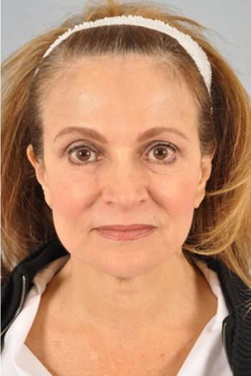 botox injection med spa service after 2
