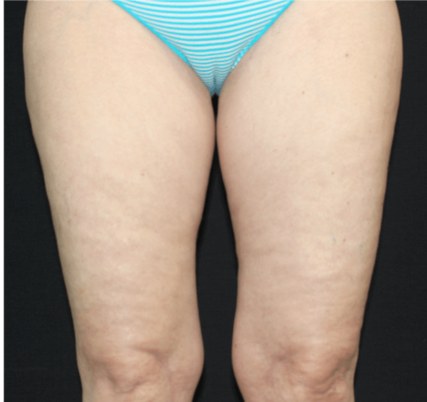cellulite reduction med spa service after