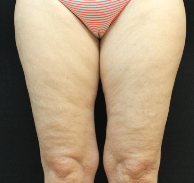 cellulite reduction med spa service before