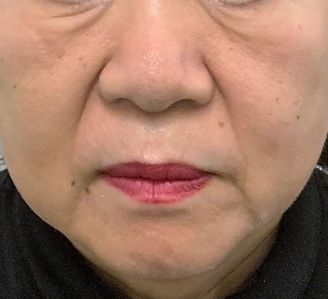 chemical peel med spa service after