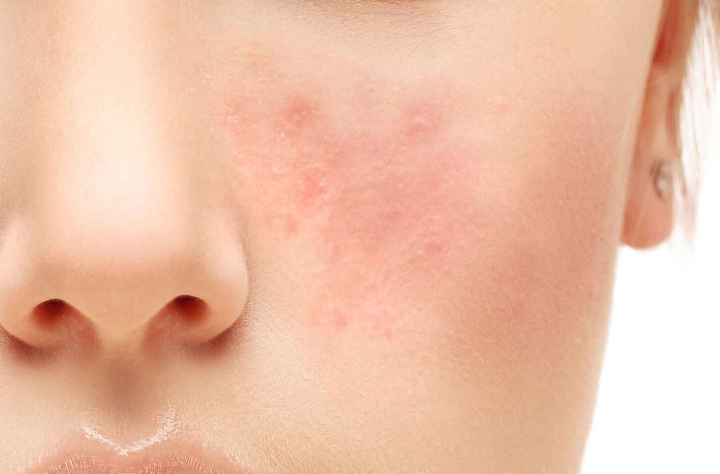 close-up on girl's face with rosacea skin
