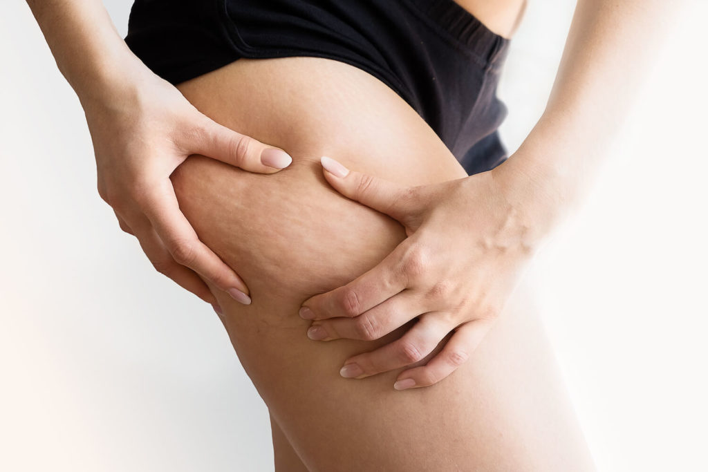 girl holding skin on legs with cellulite on legs, for cellulite reduction