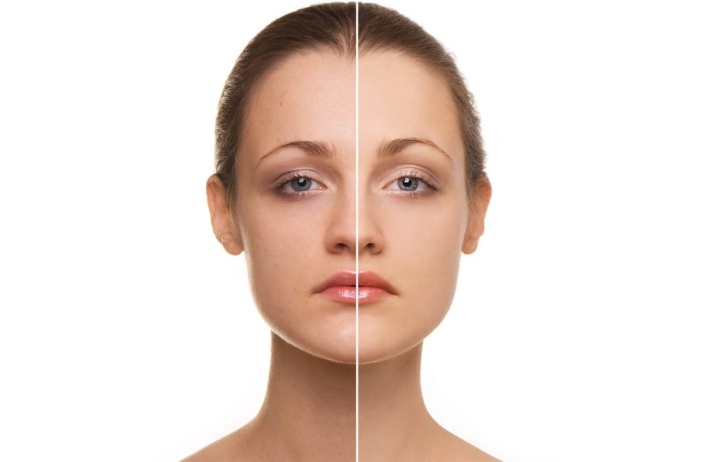 girl profile, before and after skin resurfacing treatment, split face