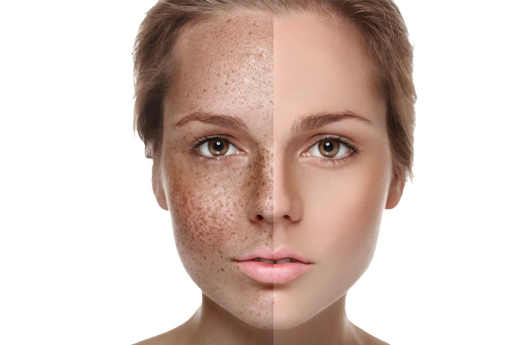 girl with hyperpigmentation, split face before and after treatment