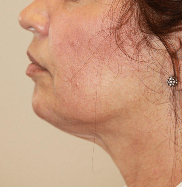 kybella med spa service after