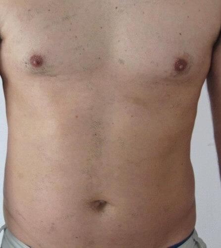 laser hair removal med spa service after