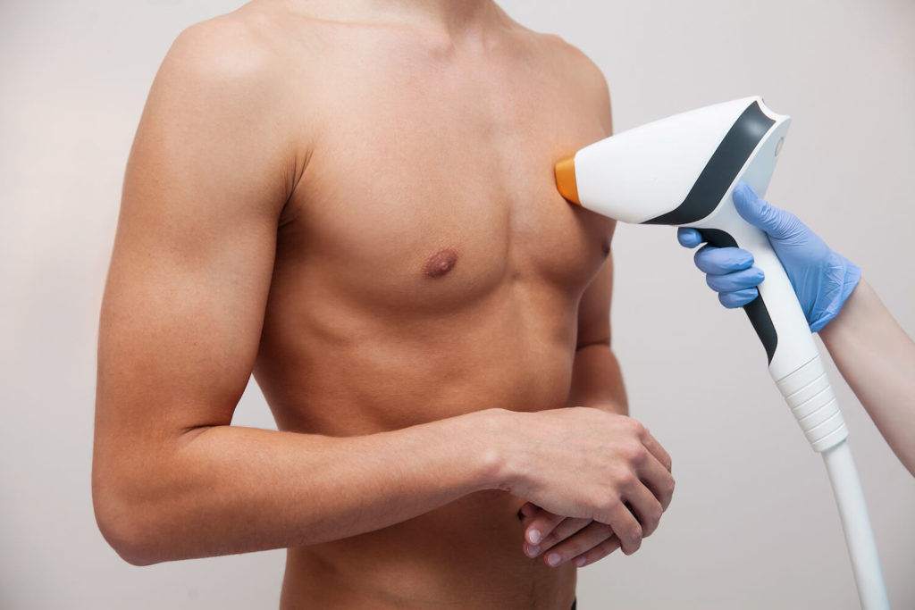 man receiving laser hair removal on chest