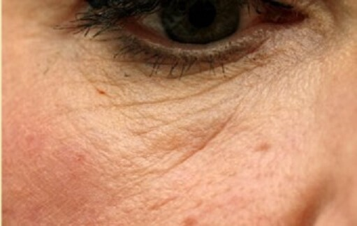 microneedling med spa service after