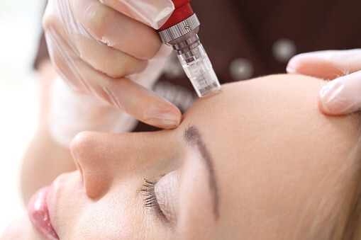 patient being treated by rf microneedling, med spa service