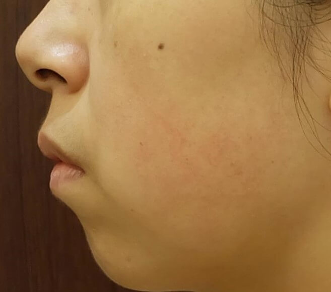 rosacea clearance med spa service before