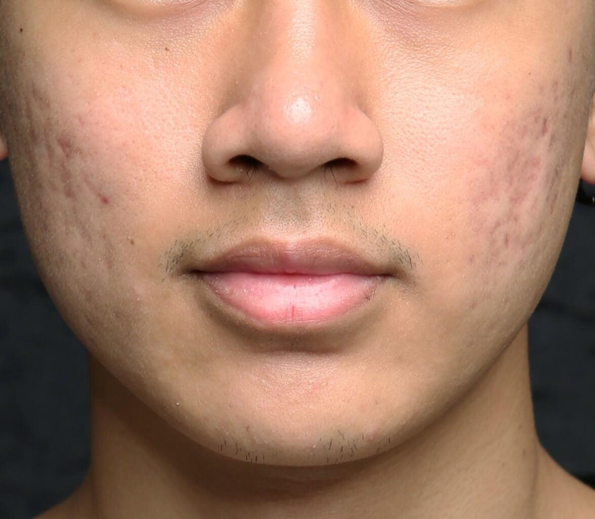 scar reduction med spa service after