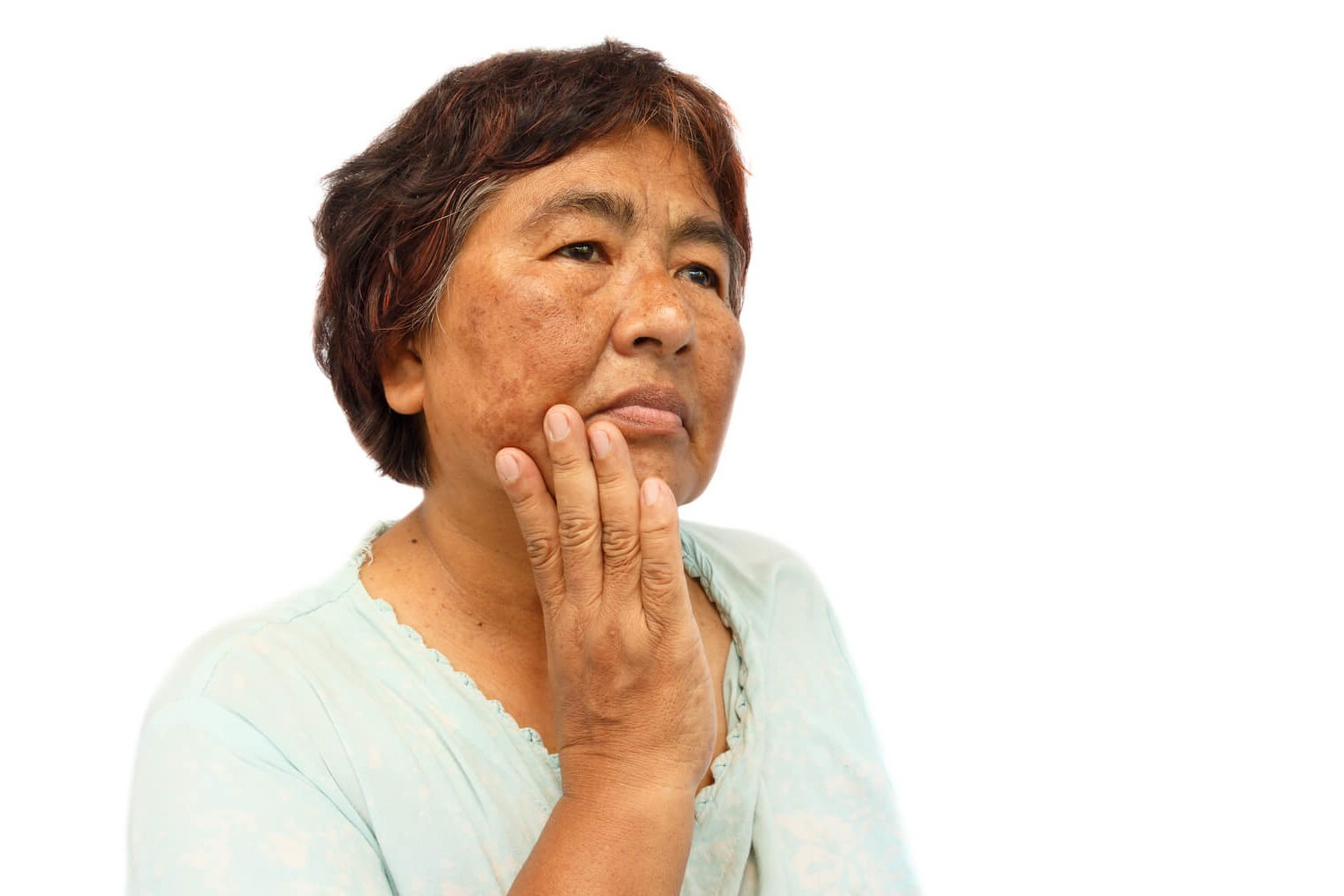 senior woman with age spots, for vascular treatment and reduction
