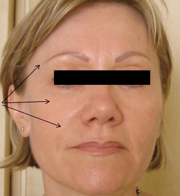 skin rejuvenation, wrinkle reduction med spa service after 2
