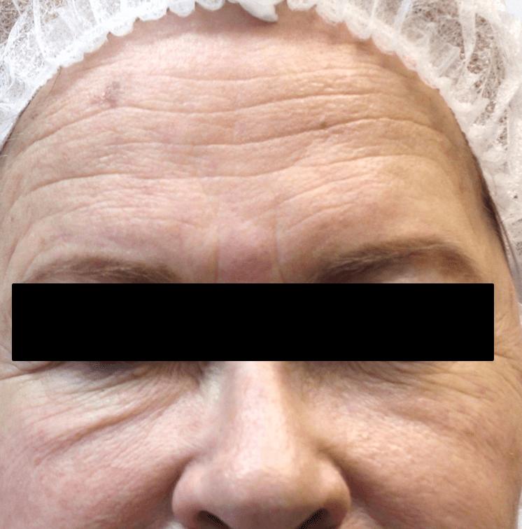 skin rejuvenation, wrinkle reduction med spa service before 2