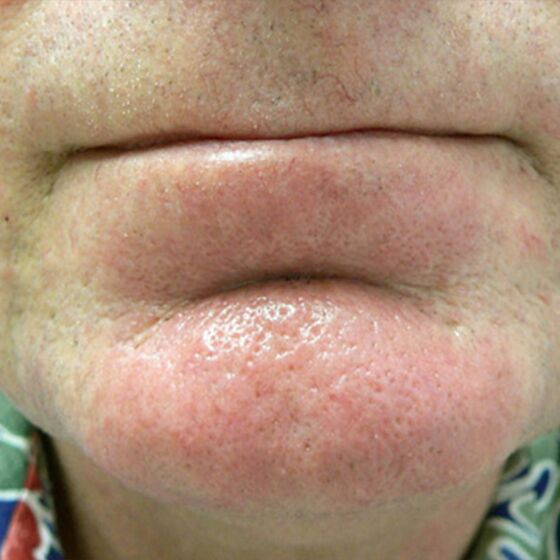spider veins after treatment, clear face
