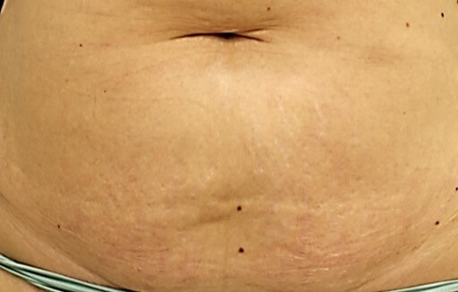 stretch marks reduction med spa service after