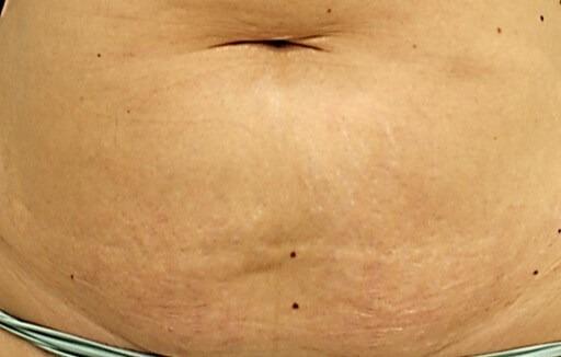 stretch marks reduction med spa service after