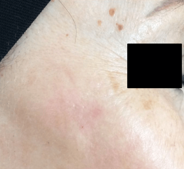 vascular lesions reduction med spa service after
