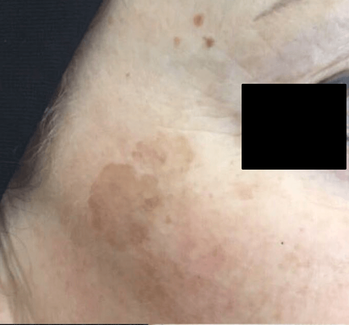 vascular lesions reduction med spa service before