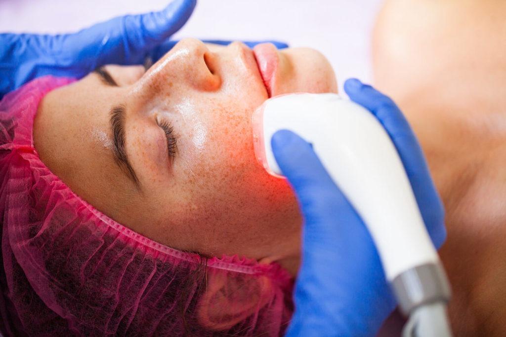 woman receiving IPL photorejuvenation skin treatment