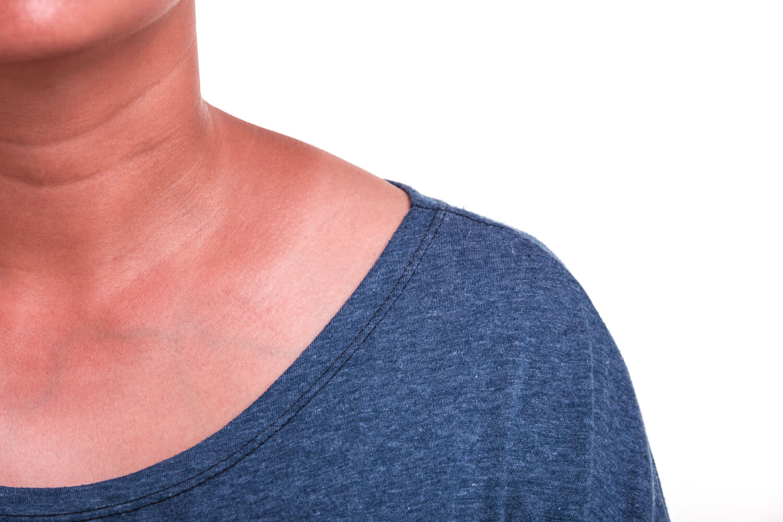 woman showing her sun damaged skin on neck and shoulder for rejuvenation treatment