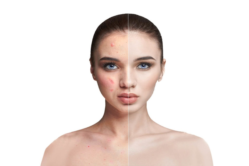 woman with acne, before and after treatment, split face