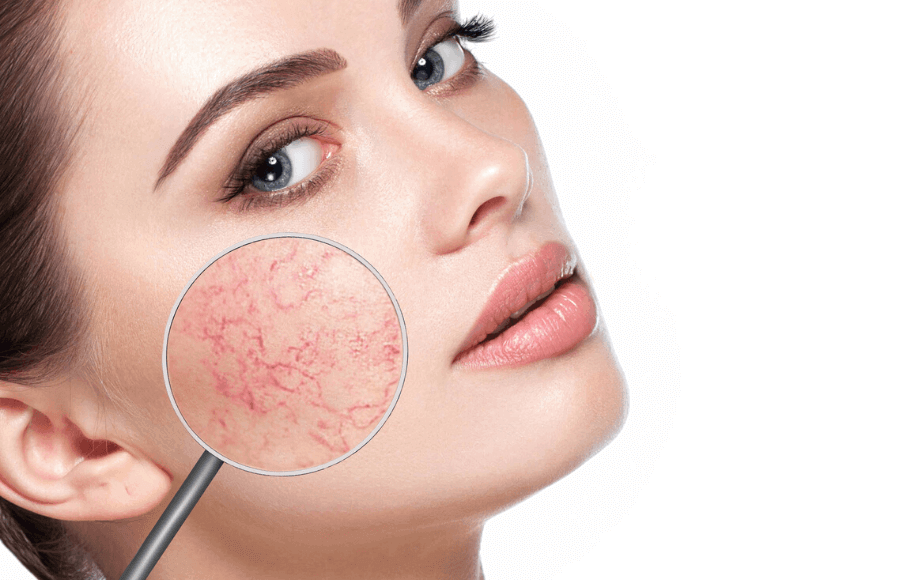 woman with beautiful skin, cross section of face showing spider veins